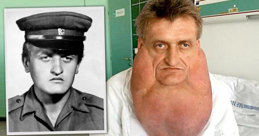 Słowacja - Lekarz usunęli nowotwór o wadze 6 kg]