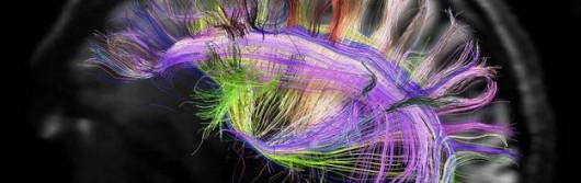 Schemat połączeń nerwowych w mózgu