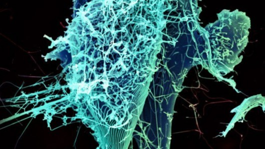 Model przestrzenny wirusa Ebola