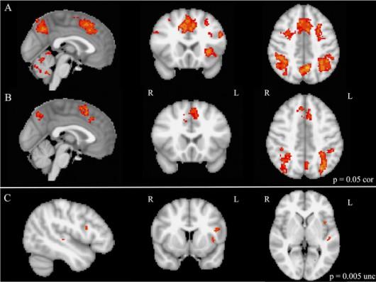 Przykładowe wyniki badań aktywności mózgu, prowadzone z wykorzystaniem metody funkcjonalnego rezonansu magnetycznego /Laboratories of Cognitive Neuroscience, Boston Children's Hospital /