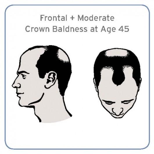 Sposób łysienia związany ze zwiększonym ryzykiem agresywnego raka prostaty /Journal of Clinical Oncology /