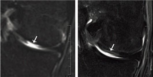 Zdjęcie MRI zniszczonej chrząstki stawowej (L) i stawu 4 miesiące po przeszczepie (P), © Department of Biomedicine, Universität Basel