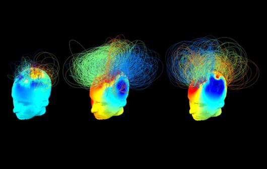 Sygnał mózgu osób w stanie wegetatywnym (po lewej i w srodku) oraz osoby zdrowej (po prawej) /Srivas Chennu /