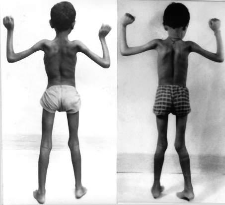 Dystrofia mięśniowa Duchenne'a 1