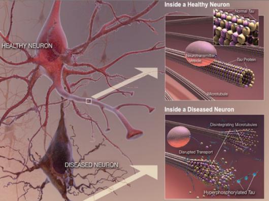 Gromadzenie się białka w mózgu nie jest przyczyną, ale objawem choroby Alzheimera