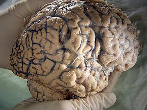 Mózg zaatakowany wirusem ATCV-1