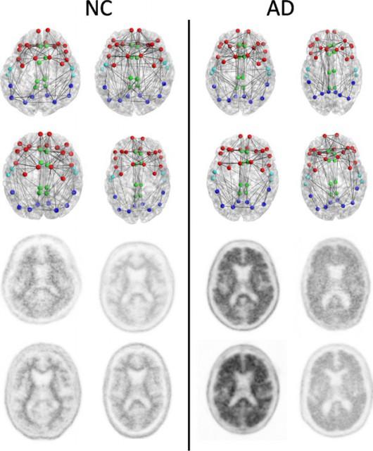 Konektom (dwa górne rzędy) i obraz PET images (dwa dolne rzędy) u czterech pacjentów zdrowych (po lewej) i chorych (po prawej) /Radiological Society of North America (RSNA) /