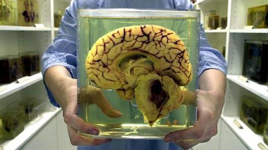 Mózg w słoiku