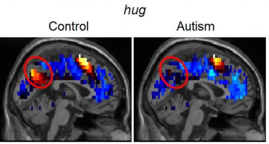 """Różnice aktywności mózgu osoby zdrowej i autystycznej (po prawej) przy wyobrażeniu """"przytulenia"""" /Carnegie Mellon University /"""