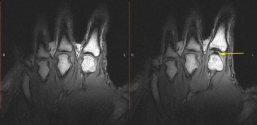 Obraz stawu palca wskazującego przed (po lewej) i po naciągnięciu. po prawej widać ślad pęcherzyka gazu /University of Alberta /