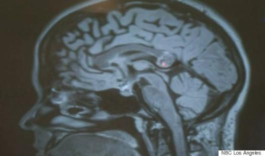 USA - Kobieta przez 26 lat miała w mózgu potworniaka 2