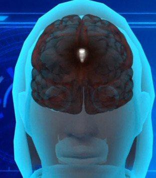 USA - Kobieta przez 26 lat miała w mózgu potworniaka 3