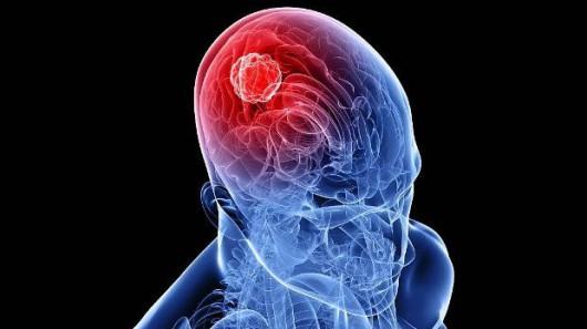 USA - Kobieta przez 26 lat miała w mózgu potworniaka
