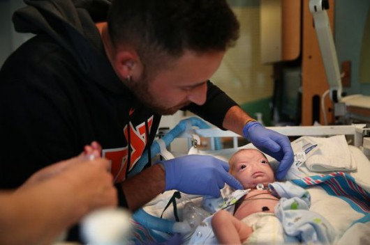Urodziło się dziecko bez jam nosowych 3