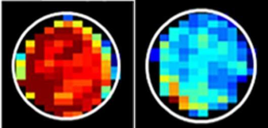 Zdrowe komórki (po lewej) zawierają więcej glukozy, która daje silny sygnał MRI (zaznaczony na czerwono) /Xiaolei Song/Johns Hopkins Medicine /