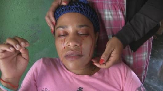 Dominikana - Nieznane zaburzenie u kobiety powoduje krwawe łzy