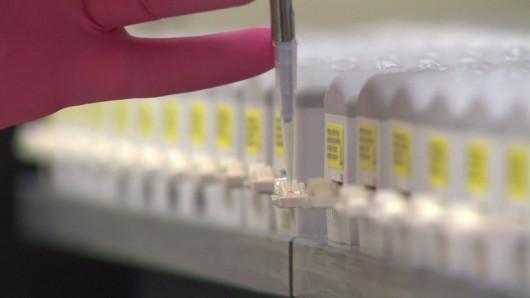 Opracowano nowy sposób badania krwi, dzięki któremu można ustalić biologiczny wiek pacjenta