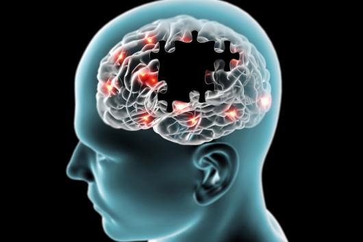 Skupiska kropel tłuszcz w mózgu mogą być przyczyną choroby Alzheimera
