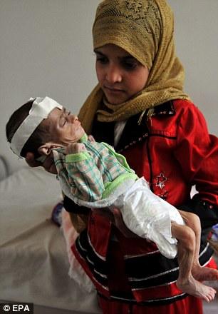 Jemen - 537 tysięcy dzieci poniżej piątego roku życia jest skrajnie niedożywionych i może umrzeć -3