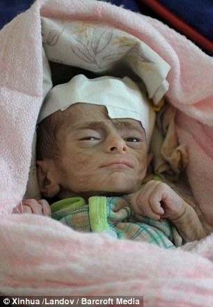 Jemen - 537 tysięcy dzieci poniżej piątego roku życia jest skrajnie niedożywionych i może umrzeć -4