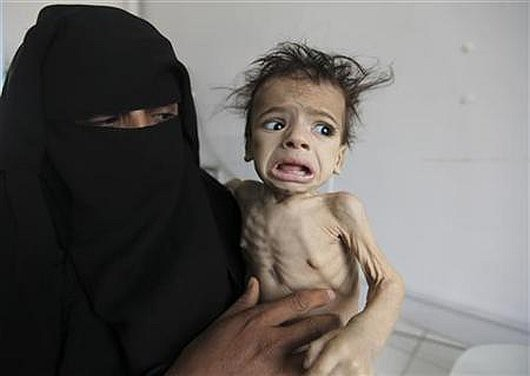 woman holds her malnourished child at a therapeutic feeding center at al-Sabyeen hospital in Sanaa