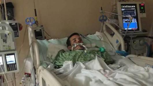 USA - Przy twarzy eksplodował e-papieros, oparzenia wewnętrzne i zewnętrzne oraz uszkodzone płuca -1