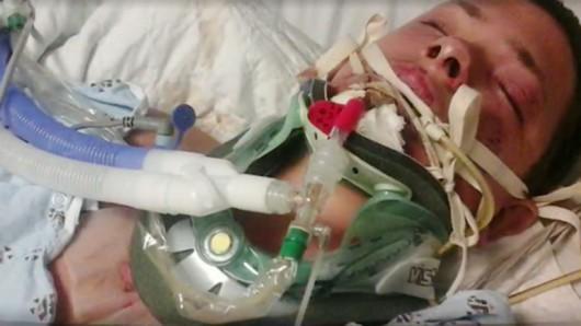 USA - Przy twarzy eksplodował e-papieros, oparzenia wewnętrzne i zewnętrzne oraz uszkodzone płuca -3