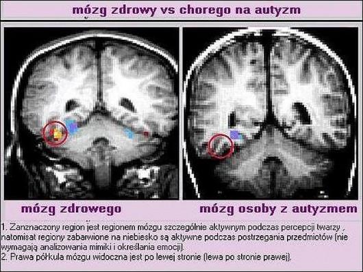 Budowa mózgu u dziecka zdrowego i z autyzmem