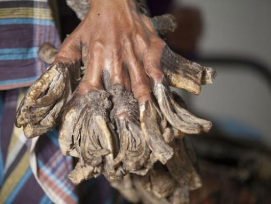 Człowiek-drzewo będzie miał podcinkę, 26-latek od 10 lat cierpi na dysplazję Lewandowskyego-Lutza -4