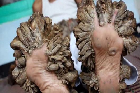 Człowiek-drzewo będzie miał podcinkę, 26-latek od 10 lat cierpi na dysplazję Lewandowskyego-Lutza -5