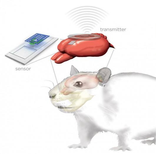 Czujnik połączony jest z nadajnikiem umieszczonym już na zewnątrz czaszki /Juli McMahon, University of Illinois/
