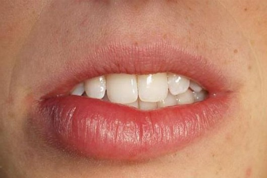 Wystąpić może obrzęk twarzy: języka czy ust
