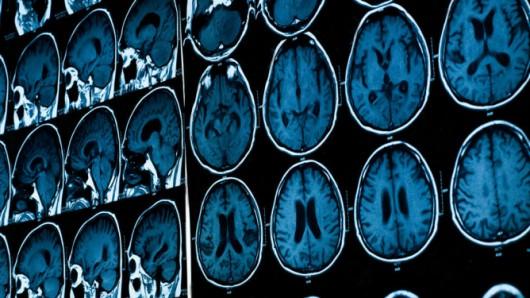 Nawyki powodują zmiany w mózgu dlatego trudno jest porzucić nasze przyzwyczajenia