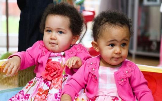 UK - Niezwykle rzadkie zjawisko, bliźniaczki jednojajowe o różnym kolorze skóry -2