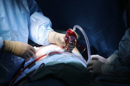 Protezy Religa Heart Ped testowano na zwierzętach