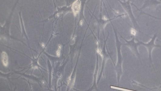 Polska - Komórkami gleju węchowego odbudowano przerwany rdzeń kręgowy -1