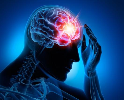 Skutki udaru mózgu można zminimalizować