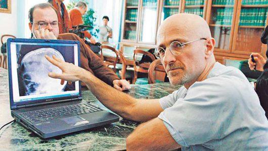 Dr. Sergio Canavero - przeszczep głowy jest możliwy