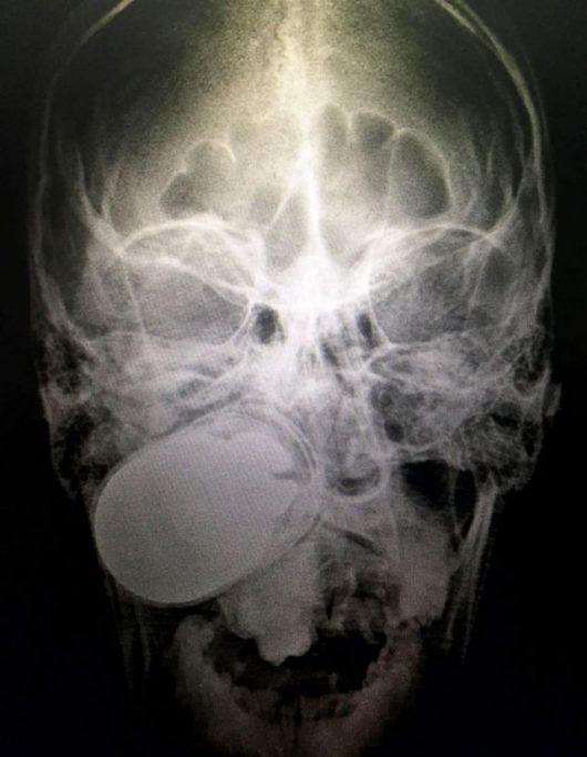Granat w twarzy mężczyzny. Źródło: EPA