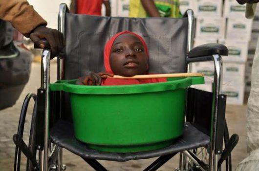 Nigeria - Tajemnicza choroba spowodowała nierozwinięcie się kończyn -2