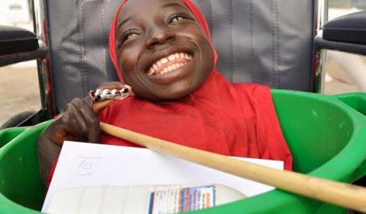 Nigeria - Tajemnicza choroba spowodowała nierozwinięcie się kończyn -3