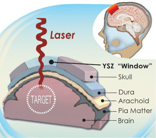 Przezroczyste implanty kości czaszki