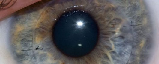 Rogówka - oko