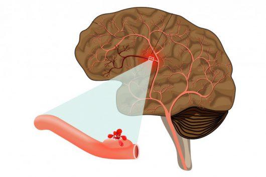 Udar krwotoczny mozgu