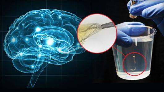 poprzez-stymulacje-komorek-nerwowych-zlota-siateczka-chca-leczyc-choroby-neurologiczne