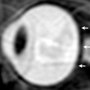 Lewa gałka oczna astronauty przed lotem /Radiological Society of North America /materiały prasowe