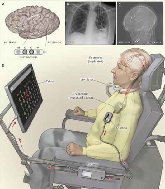 myslami-steruja-komputerem-poprzez-elektrode-w-mozgu-testowany-jest-nowy-system-dla-chorych-na-stwardnienie-zanikowe-boczne-2