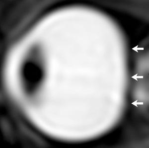 To samo oko po powrocie astronauty z długotrwałego lotu kosmicznego /Radiological Society of North America /materiały prasowe