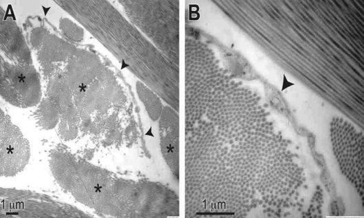 W ciele człowieka odkryto nowy organ, interstitium jest tkanką śródmiąższową