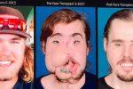 Niewiarygodne wręcz efekty przeszczepu twarzy sprzed roku
